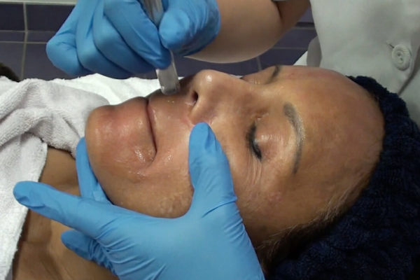 Micro Needling Course